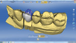 Figure 15 IPS e.max restoration designed with Sirona 4.0 software.