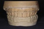 Figure 6. Study cast of mock-up showing corrections desired in gingival levels of teeth Nos. 4 through 13.