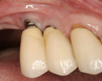 Figure 5  Absence of attached gingiva predisposes some patients to progressive recession (site No. 4).
