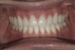 Figure 14. Final restorations 11 months after the start of treatment.