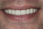 Figure 15. Reverse smile line was corrected with final porcelain restorations.