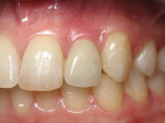 Figure 2  Clinical photograph of an implant restoration replacing the congenitally missing maxillary left lateral incisor. Note the cyanotic color changes, due to inflammation and cement, of the marginal gingiva in a 31-year-old female patient with t