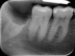 Figure 6 Periapical radiographs were taken before suturing.
