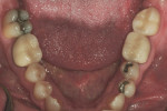 Figure 1The patient presented with a chipped layered zirconia crown on tooth No. 18.