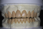 Figure 3 A diagnostic wax-up was completed to address both esthetic and functional concerns.