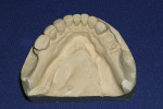 Figure 1 Stone cast of the mandibular arch.