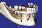 Figure 3 CBCT 3-D volumetric rendering illustrating three implants and three virtual teeth.