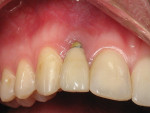 Figure 8  Clinical photograph of gingival recession resulting from excess cement around an implant crown in the maxillary right lateral incisor in a 24-year-old woman.