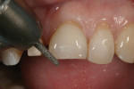 Figure 5 Bur making the incisal-depth cut and reducing the incisal edge.