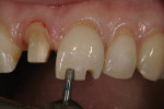 Figure 4 Bur making the incisal-depth cut and reducing the incisal edge.