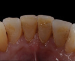 The patient presented with a rough lingual surface on his lower central incisor.