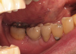 Figure 5  Final, cement-retained crown No. 30. (restorative therapy by Louis Marion, DMD)