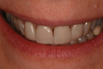The patient presented with her unsatisfactory and old veneers.