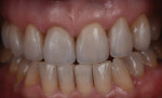The finished case demonstrates the major improvement esthetically by incorporating six additional veneers into the treatment plan without preparing anything other then the old restorations.