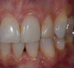 A common complaint from patients exhibiting abfractions is tooth sensitivity.