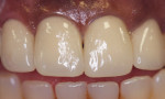 Figure 1. Maxillary anterior ceramic-noble metal crowns (lateral and central incisors) cemented with Ceramir Crown & Bridge cement, at 3-year recall.