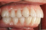 A right buccal view of the completed peripheral build-up with