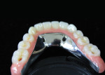 A lingual view of the finished mandibular acrylic and composite implant-supported hybrid.