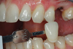 A final shade was taken for the IPS e.max Press hybrid abutment and separate crown restoration before the teeth dehydrated.