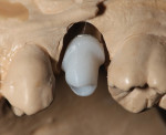View of the IPS e.max Pressed hybrid abutment on the model. The pressed hybrid abutment crown was cut back for layering.