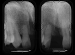 Figure 2  Radiographs of the central incisors area and nasopalatine canal (Case 1).
