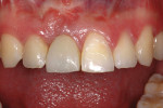 Figure 7  The provisional crown on the right central incisor 1 year after initial graft.