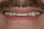 Figure 1  The patient's smile from a conversational distance reveals a reverse smile line and teeth that are shorter than ideal proportions.