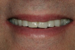Figure 14  Patient's smile reflects the esthetic benefits of the completed restorations.