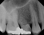 Figure 2. Preoperative radiograph of tooth No. A in the No. 4 position (recurrent caries).