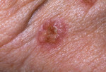 Figure 2. Basal cell carcinoma (BCC).