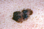 Figure 5. Melanoma: Clinical case.