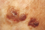 Figure 3. Squamous cell carcinoma (SCC).