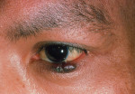 Figure 6. Kaposi sarcoma (KS).