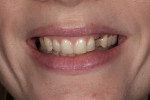 Figure 4. A composite mock-up was done to evaluate the final tooth length and shape and the patient's function.