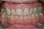 Figure 3. Pretreatment retracted photograph showing uneven gingival architecture and the dark color of deciduous canine H.
