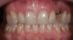 Figure 5. After implant placement and orthodontic treatment, the teeth were in good position for conservative porcelain veneer restorations.