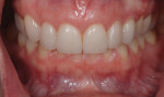 Figure 13. Photograph taken 2 months after insertion shows gingival maturation around teeth Nos. 7 through 9 and harmonious gingival color at the No. 11 position.