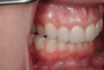 Figure 14. The shade match of the porcelain restorations was excellent when compared to the patient's natural teeth.