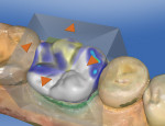 Figure 11 The restoration proposed by CEREC SW 4.0.