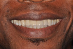 Figure 18  Full-smile view of final restorations.