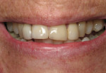 Figure 2 Preoperative close-up of the patient's smile. Note the projection of her anterior teeth, the narrowing of her maxillary arch, and the way her incisors do not follow the curvature of the lower lip.