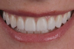 Figure 4 Thin veneers (eg, 0.2 mm) over nice underlying tooth color.
