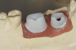 Figure 13 Zirconia abutments with a titanium screw base.
