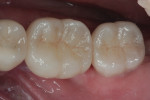 Figure 14 Lithium-disilicate crowns over the zirconia abutments in Figure 13.