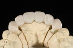 Figure 11 Thin facial layering provides translucency, while full lingual contour zirconia provides durability.