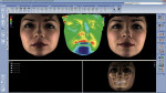Figure 1  With CBVT technology, volume ranges can be produced to view a single tooth or whole skull region. Lasers scan the face while a digital camera captures the facial images. Soft-tissue images can be overlaid on top of the cone beam images, ena
