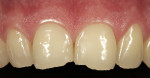 Figure 2   A color mismatch existed between old Class III restorations and the natural tooth structure.