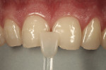 Figure 3  The monochromatic nature of the tooth color was suitable for re-restoration using a single shade of a nanohybrid composite (Nuance A2).