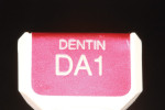 The dentin build-up will complete the dentin structure predominantly from the middle to incisal third.