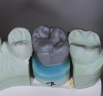 Maxillary crown wax-up.